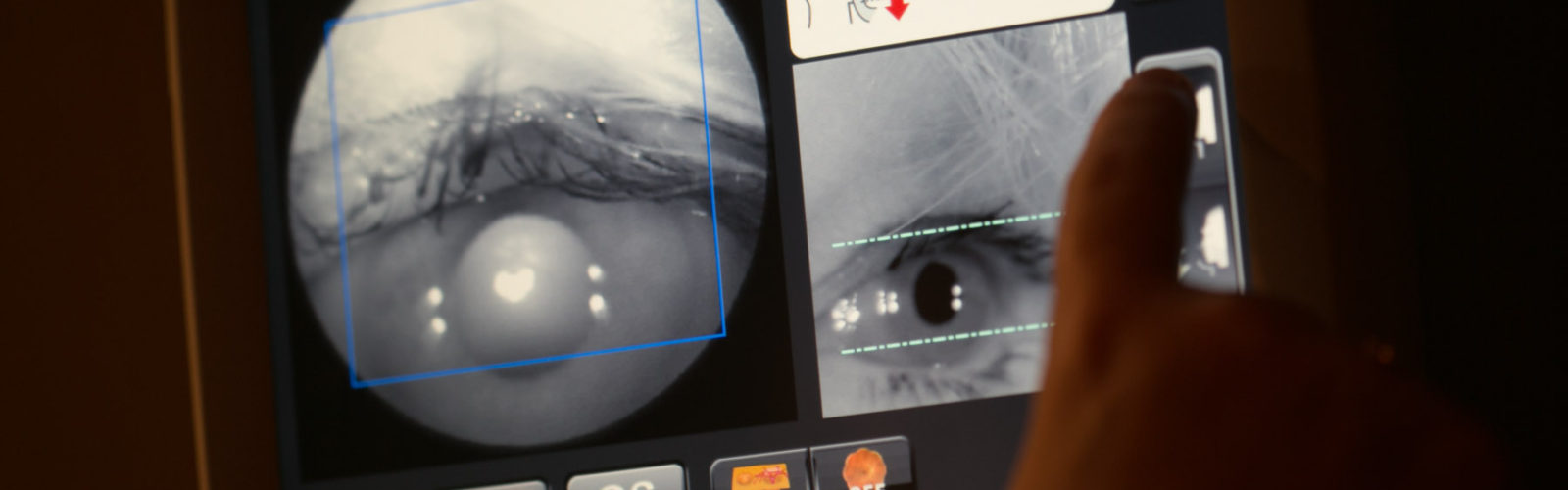 Picture of eye being taken by camera in clinic